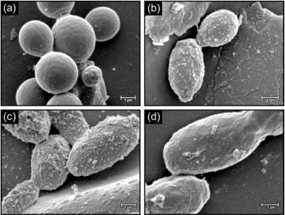 Candida albicans. Foto: NLM / NIH [CC-BY-SA 3.0]