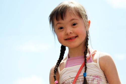 Menina portadora da Síndrome de Down. Foto: Denis Kuvaev / Shutterstock.com