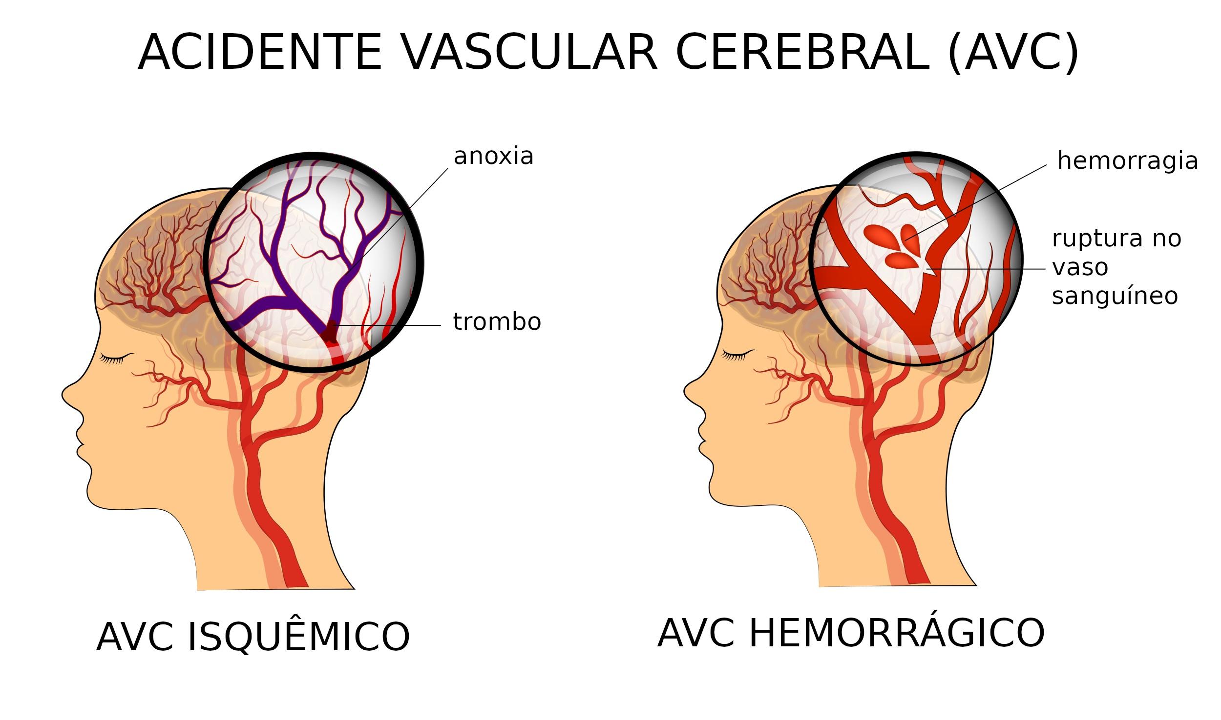 acidente-vascular-cerebral-384907717 Como Prevenir o Infarto Cerebral e os Danos à Memória