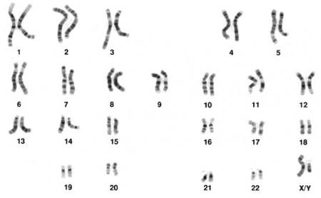 Resultado de imagem para Cromossomos humanos