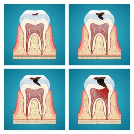 Evolução de uma cárie dentária. Ilustração: Maxi_m / Shutterstock.com