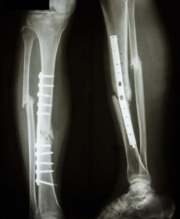 Tíbia e fíbula fraturadas (ossos da canela), após cirurgia para inserção de placa e parafusos. Foto: Puwadol Jaturawutthichai / Shutterstock.com