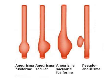 Tipos de aneurismas. Ilustração: Timonina / Shutterstock.com