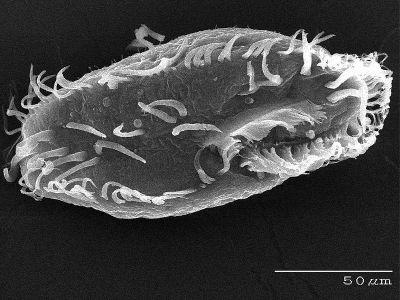Oxytricha trifallax. Foto: Genome.gov / [Public domain]
