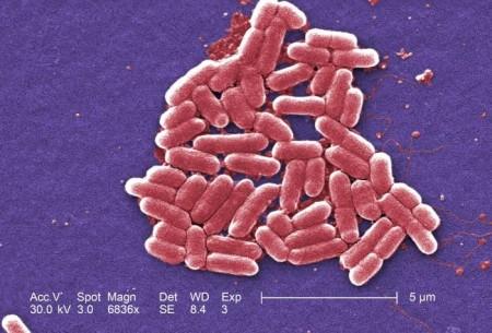 Escherichia coli, bactéria presente na flora intestinal. Foto: Janice Haney Carr / CDC