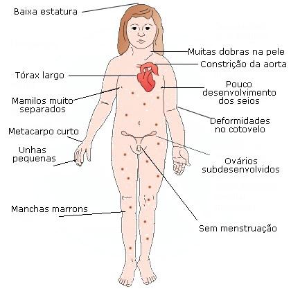 sindrome turner caracteristicas