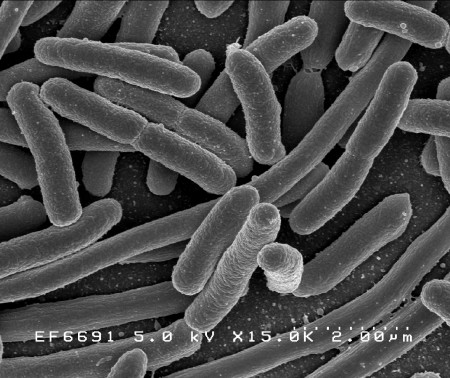 Escherichia coli. Foto: NIAID / NIH