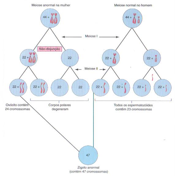 anomalias geneticas