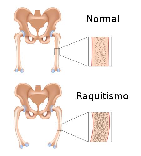 Raquitismo. Ilustração: Alila Medical Media / Shutterstock.com