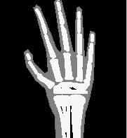 Figura 01: representação gráfica da aplicação dos raios X na medicina para visualizar a estrutura óssea