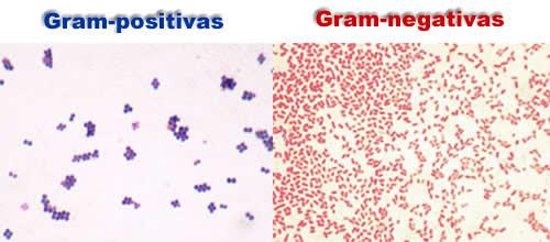 Bactérias gram-positivas e gram-negativas. Fotos: Y_tambe / Wikimedia Commons ([1][2]) [CC-BY-SA 3.0]