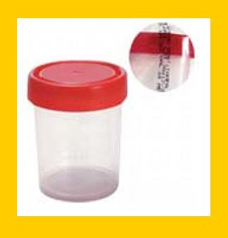 Exame de urina 1