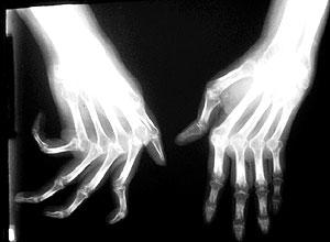 tudo sobre artrite reumatóide