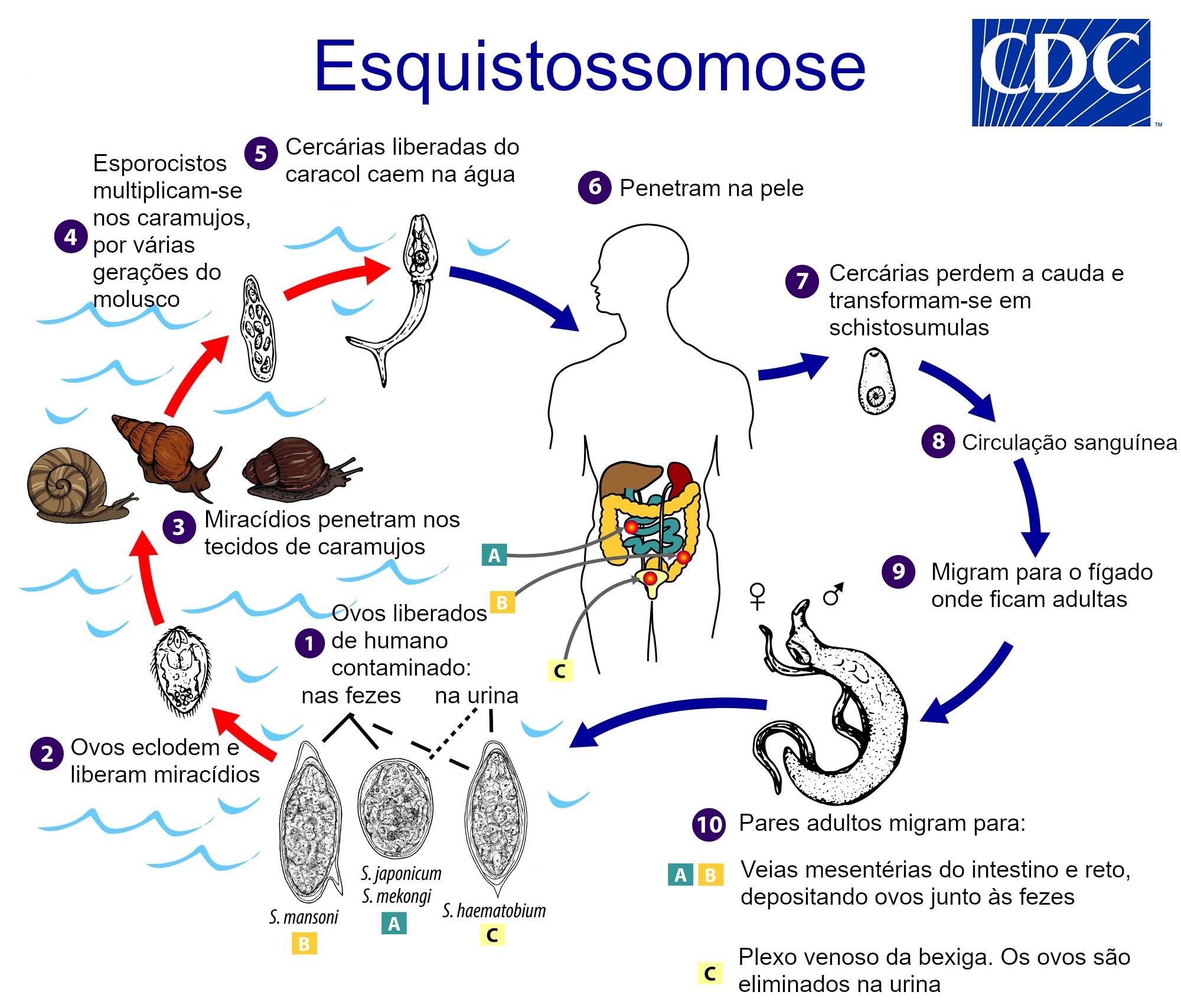 Schistosomiasis (vérmétely fertőzés) - Parazita schistosoma mansoni