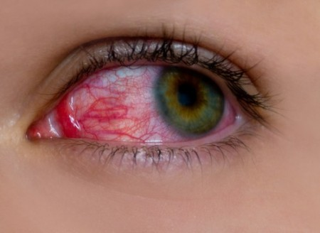 Hiperemia ocular. Foto: Sergii Chepulskyi / Shutterstock.com