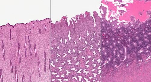 Três estágios do endométrio: folicular, luteal e menstrual. Ilustração: vetpathologist / Shutterstock.com