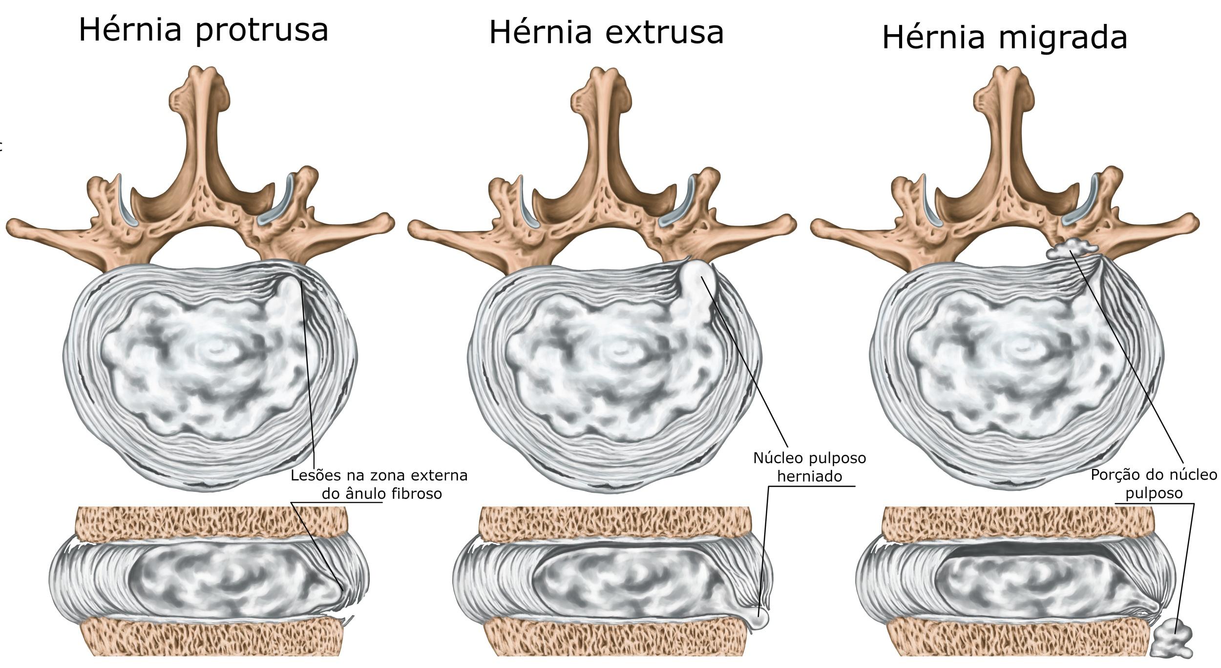 Hérnia de disco - tipos, causas, sintomas, tratamentos - Ortopedia ...