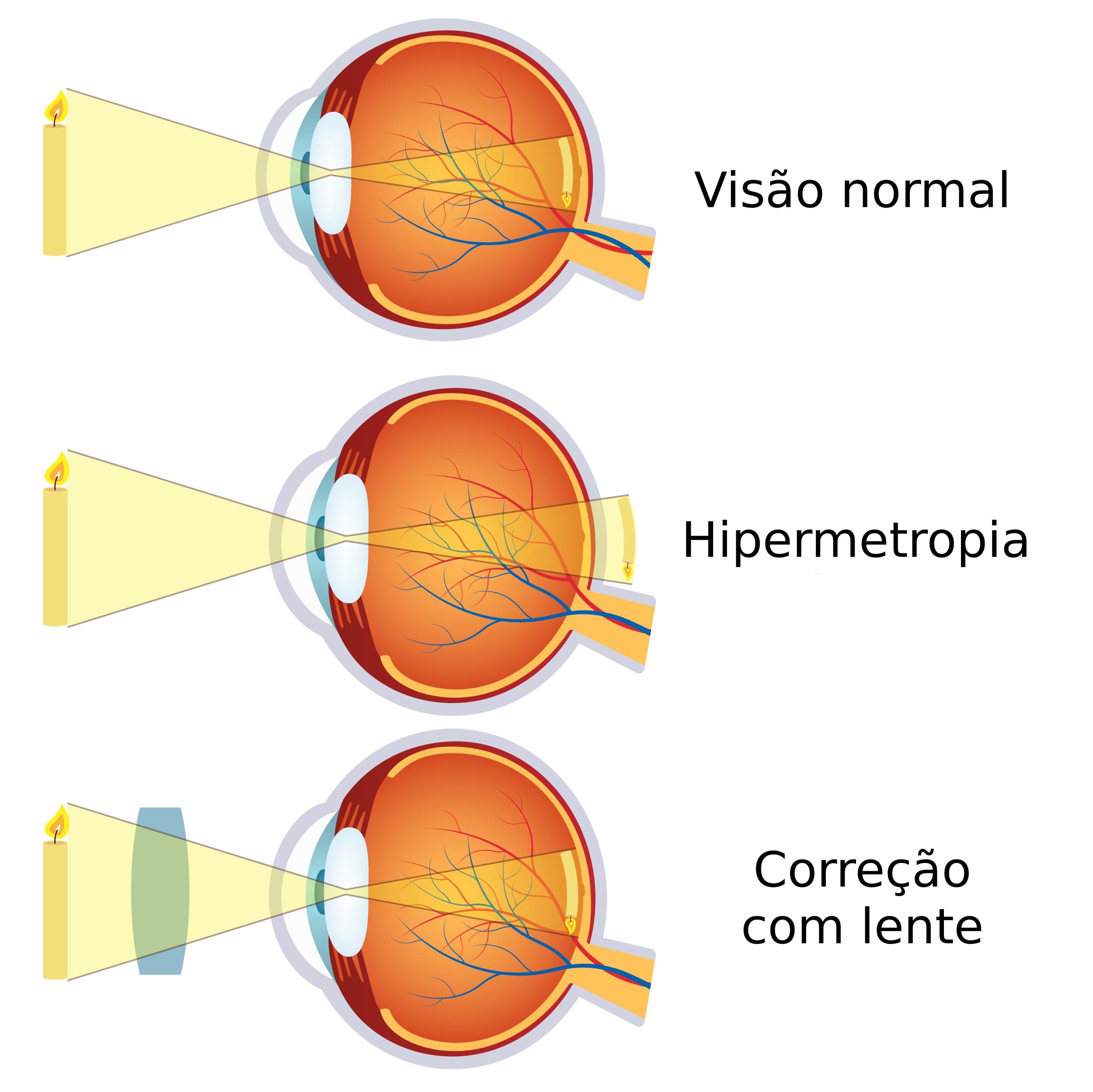 12611b7dc Como a imagem se forma atrás da retina em um olho com hipermetropia.  Ilustração: Neokryuger / Shutterstock.com [adaptado]