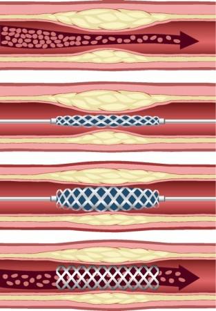 Implante de um stent cardíaco. Ilustração: anemad / Shutterstock.com
