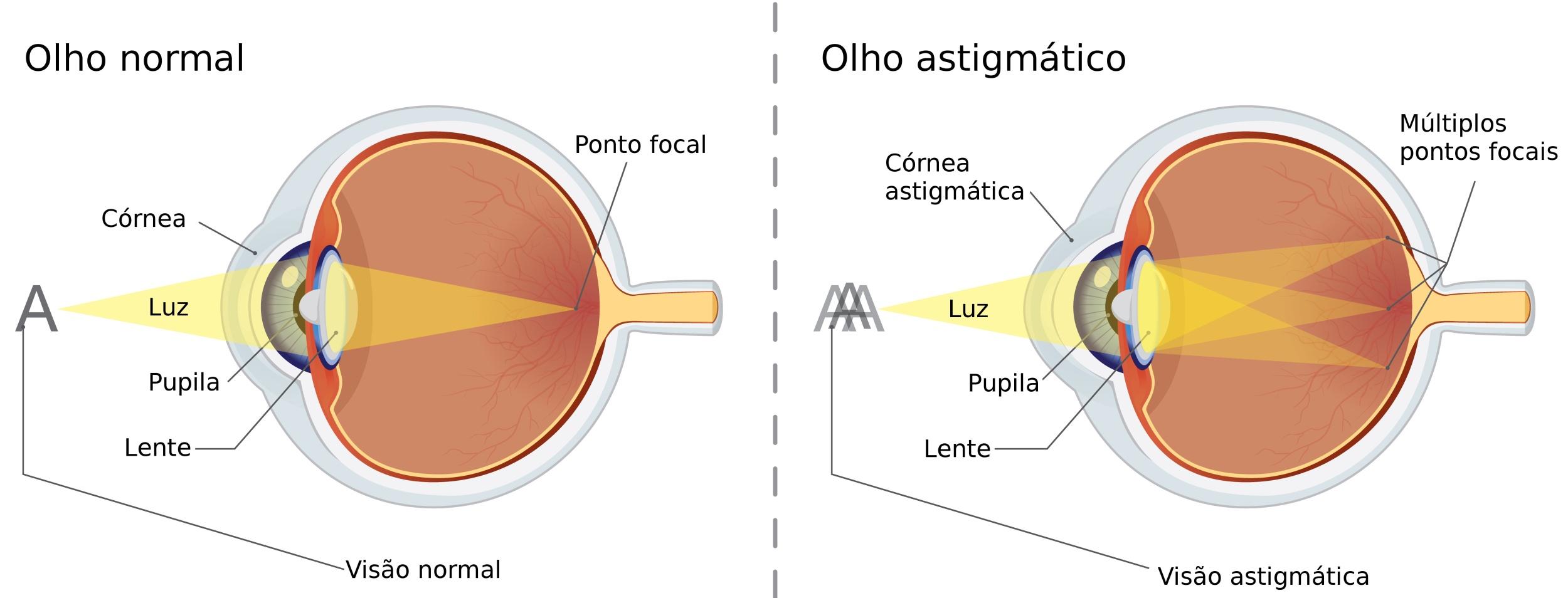 a265c69053 Comparação entre um olho normal e um olho de uma pessoa com astigmatismo.  Ilustração: solar22 / Shutterstock.com [adapatado]