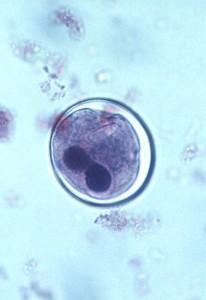 Cisto de Balantidium coli no intestino de um porco.