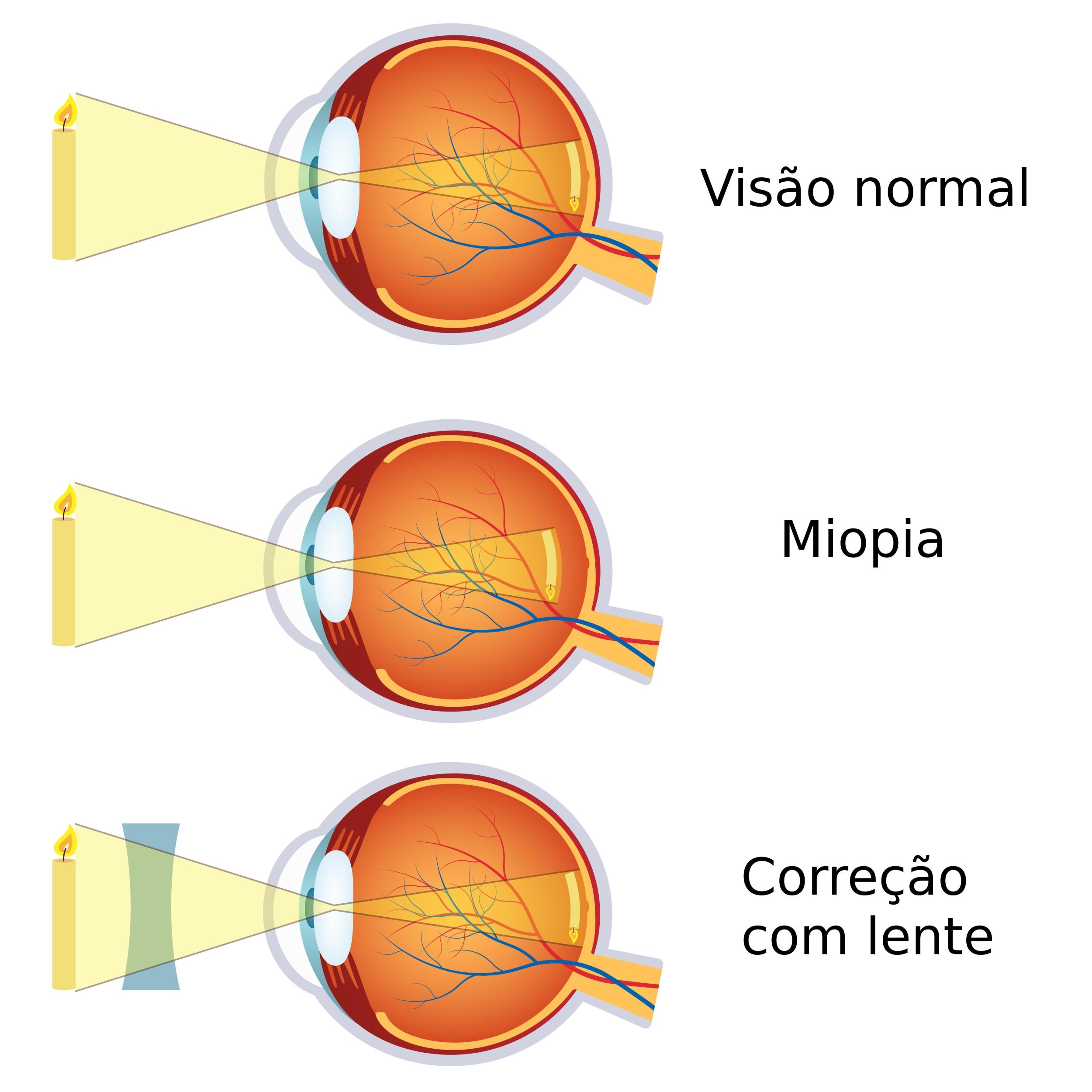 67ece6305 Ilustração mostra como a imagem de um objeto se forma na retina de um olho  com miopia e como o problema é corrigido com uso de lentes.