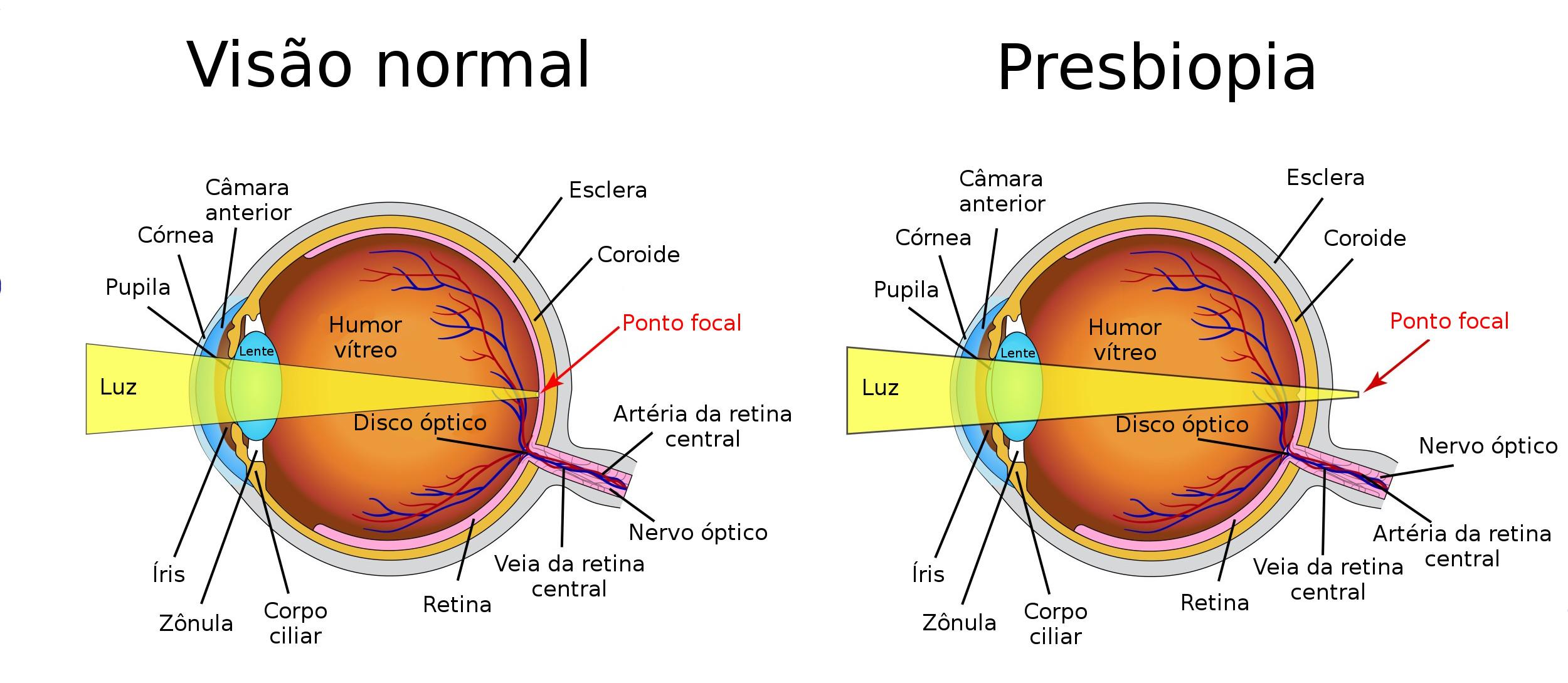 9d550a4b40 Esquema mostra como se forma a imagem na retina em um olho normal e no olho  de uma pessoa com presbiopia. Ilustração: Mrs_Bazilio / Shutterstock  [adaptado]