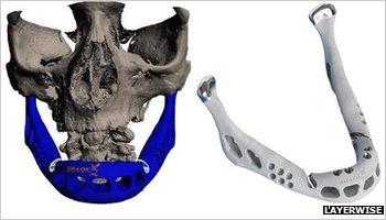 Mandíbula fabricada com impressora 3D. Foto: LayerWise / Divulgação