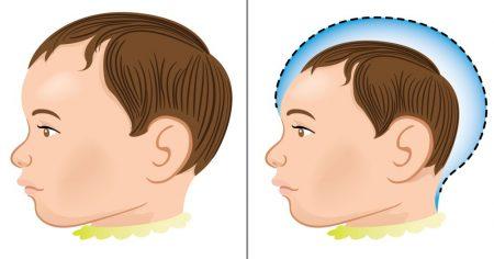 Criança normal e outra com microcefalia. Ilustração: Luciano Cosmo / Shutterstock.com