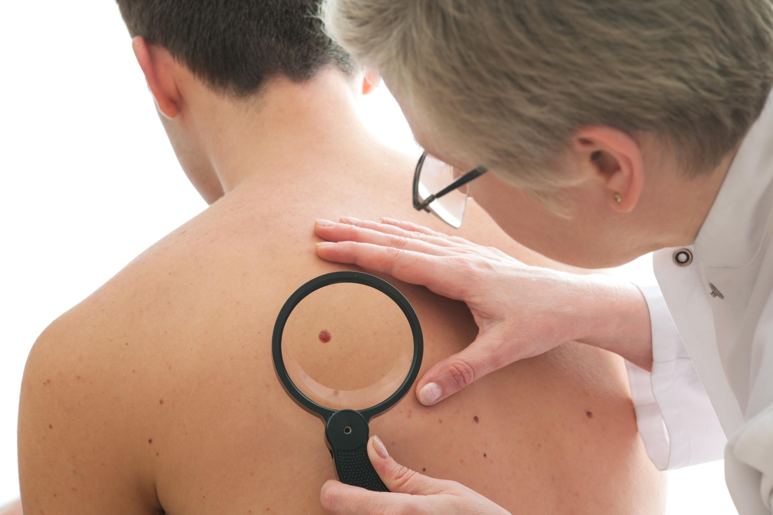Resultado de imagem para Câncer de pele não melanoma é o mais comum no Brasil. Saiba mais sobre a doença